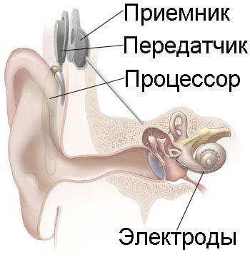 Схема кохлеарного имплантата